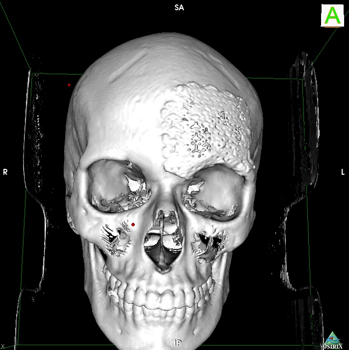 3D SR Image