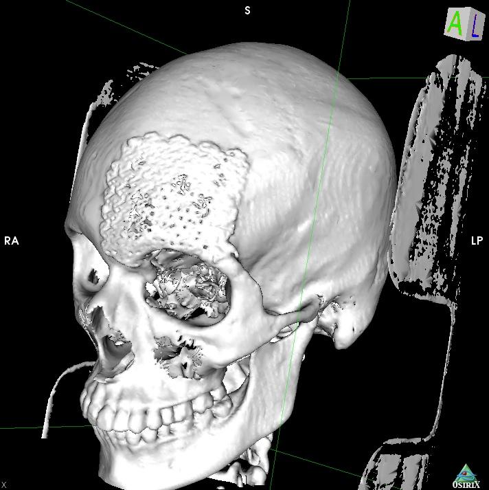 3D SR Image1