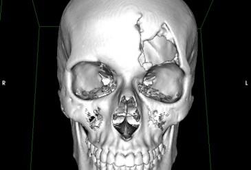 Дефект костей свода черепа в левой лобно-орбитальной области