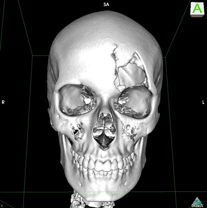 3D SR Image11