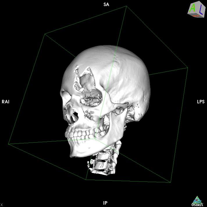 3D SR Image22