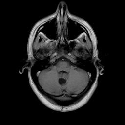 удаление опухоли мозжечка