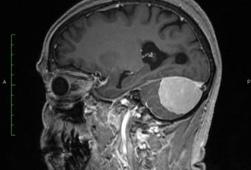 Менингиома мозжечкового намета