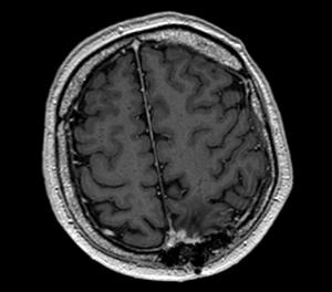 удаление менингиомы фалькса