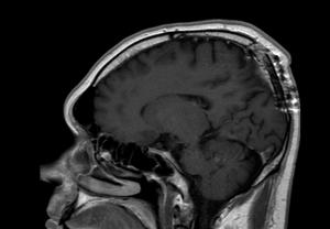 удаление менингиомы верхнего сагиттального синуса