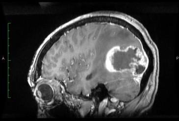 Удаление злокачественной астроцитомы Grade IV WHO в правой темнее-затылочной области