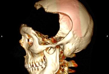 Обширный дефект костей свода черепа