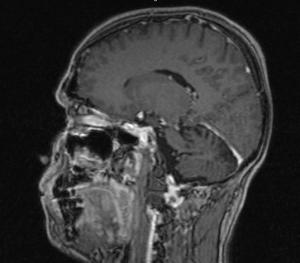 удаление опухоли задней черепной ямки