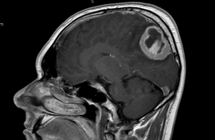 менингиома задней трети верхнего сагиттального синуса