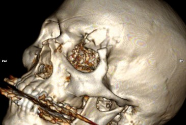Репозиция вдавленного перелома свода черепа